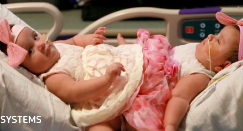 How 3D technology helped surgeons separate conjoined twins
